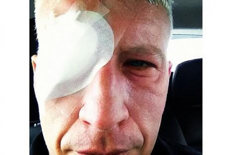 Anderson Cooper Blind Instagram Anderson Cooper Sofreu Lesões Nos Olhos Em Portugal