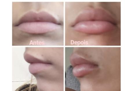 Debora Picoito Intervencao Estetica 2 Débora Picoito Faz Intervenção Estética. Veja Como Ficou