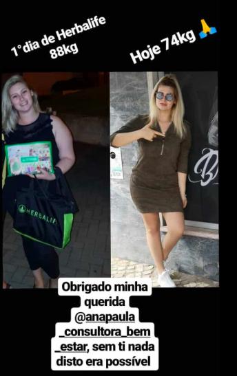 Bernardina Bernardina Brito Perdeu 14 Quilos E Mostra O Antes E Depois