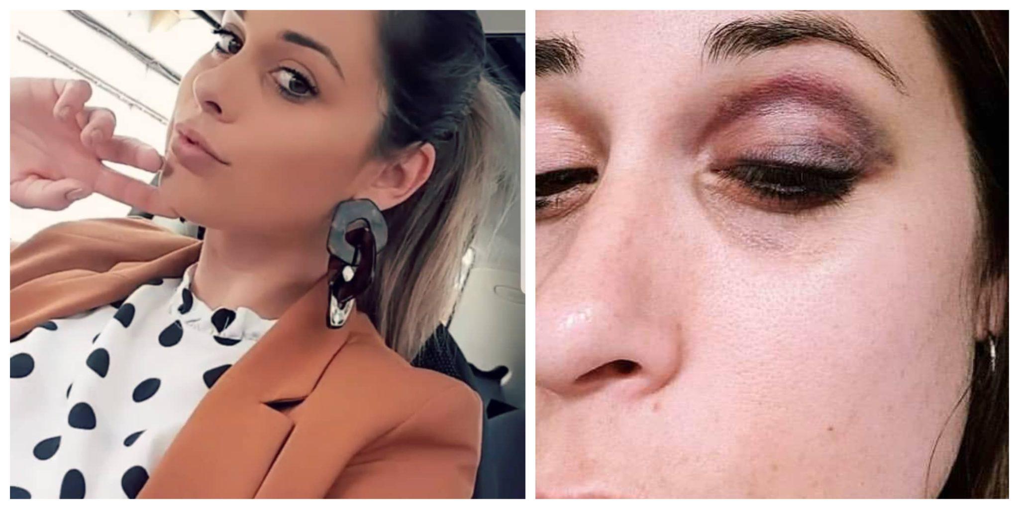 Daniela Duarte Ex-Concorrente Da 'Casa Dos Segredos' Divulga Fotos Após Episódios De Violência Doméstica
