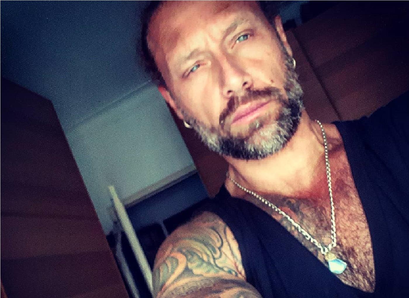 """jorge moreira Ex-marido de Ana Malhoa mostra-se com hematomas na cara: """"Há dias assim..."""""""