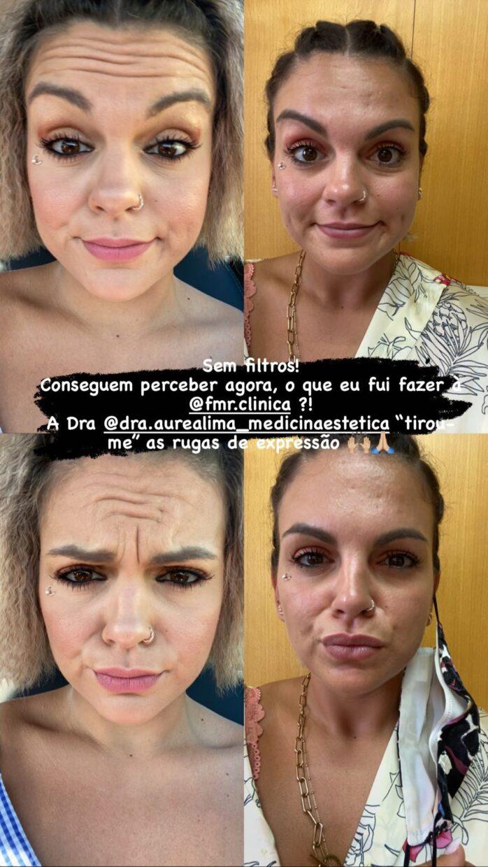 Fanny-Botox-Antes-Depois-1