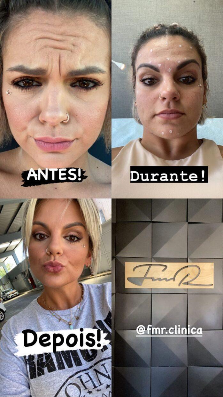 Fanny-Botox-Antes-Depois-2