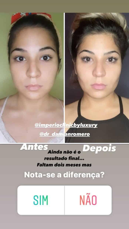 angelica-cirurgia-antes-depois
